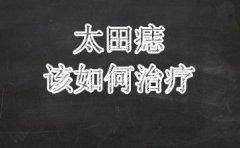 南京维多利亚研究院:祛太田痣方法有哪些
