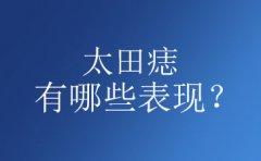 太田痣的一般表现是什么