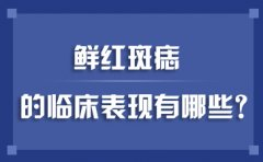 南京哪家医院可以治疗胎记?鲜红斑痣的临床表现有哪些?