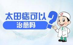 南京哪家医院可以治疗胎记?太田痣可以治愈吗?
