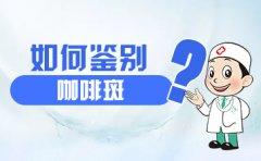 南京去胎记医院哪家好?如何鉴别咖啡斑?