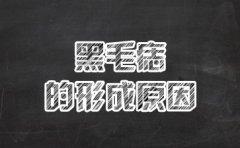 南京血管瘤最好医院?黑毛痣的形成原因是什么?