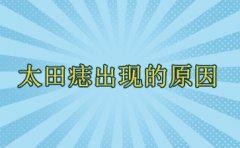 南京看胎记最好的医院?太田痣出现的因素