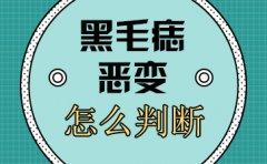 南京看胎记最好的医院?黑毛痣的恶变判断
