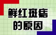 南京去胎记哪家医院好?鲜红斑痣出现的原因是什么呢