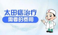 南京治疗胎记的医院?太田痣治疗需要的费用
