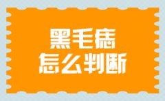 南京儿童医院可以去胎记吗?黑毛痣是怎么判断的呢