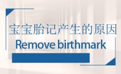 宝宝胎记的出现有哪些原因